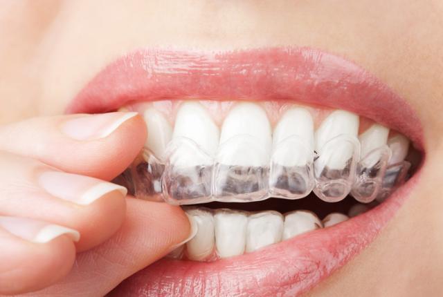 βρυγμος,βρουξισμος,οδοντιατροι,οδοντιατρειο,Λαρισα