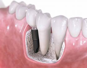 οδοντιατροι,οδοντιατρειο,οδοντιατρεια,οδοντικα εμφυτευματα,εμφθτευματα,Λαρισα.