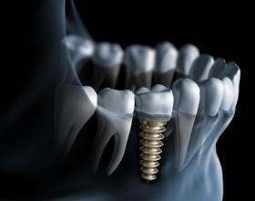 οδοντικα εμφυτευματα,Λαρισα,οδοντιατροι
