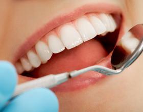 Καθαρισμός Δοντιών,οδοντίατροι ,λαρισα