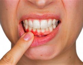 ουλιτιδα,θεραπεια,οδοντιατρος, Λαρισα